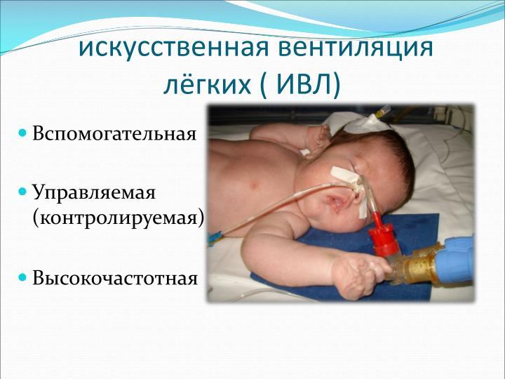 искусственная вентиляция лёгких ( ИВЛ)