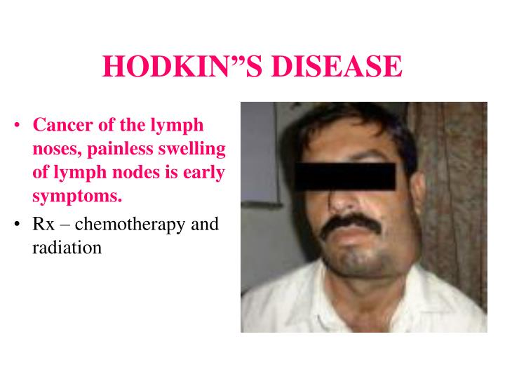 Cancer of the lymph noses, painless swelling of lymph nodes is early symptoms.