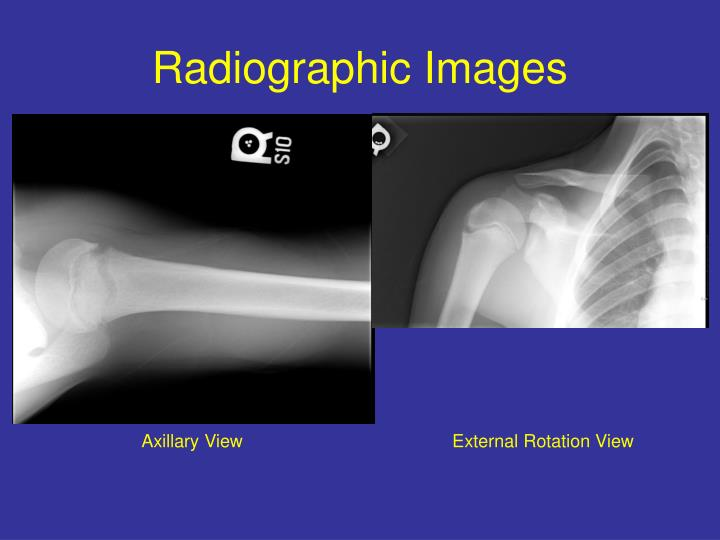 Radiographic images