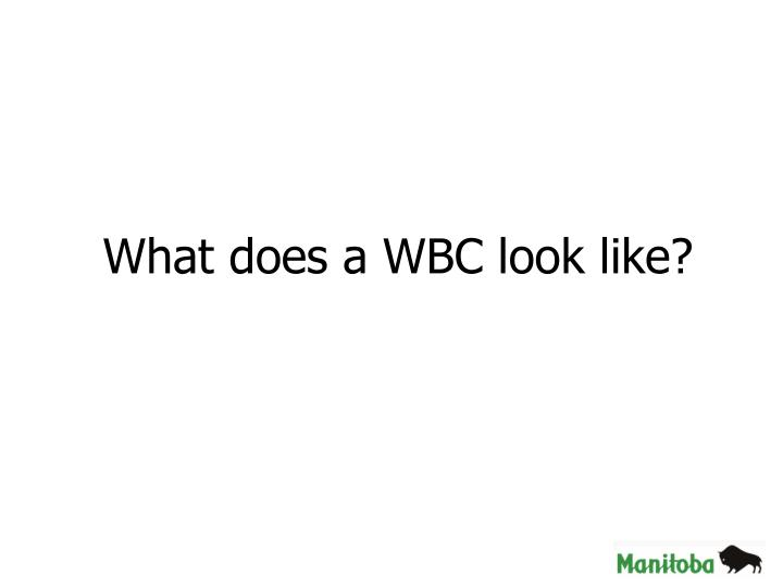 What does a WBC look like?