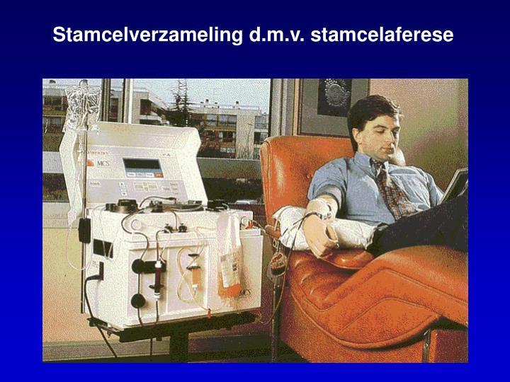 Stamcelverzameling d.m.v. stamcelaferese