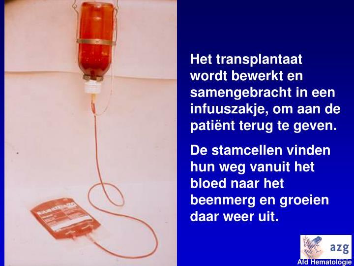 Het transplantaat wordt bewerkt en samengebracht in een infuuszakje, om aan de patiënt terug te geven.