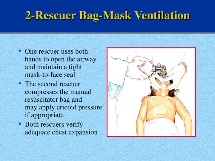 2-Rescuer Bag-Mask Ventilation
