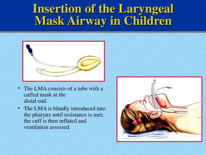 Insertion of the Laryngeal Mask Airway in Children