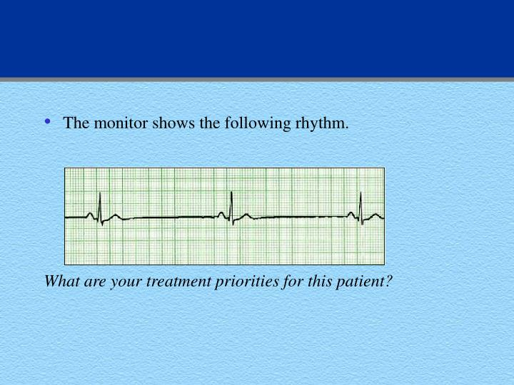 The monitor shows the following rhythm.