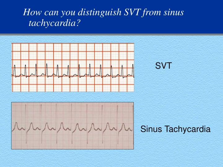How can you distinguish SVT from sinus tachycardia?