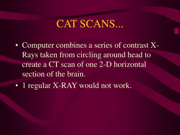 CAT SCANS...