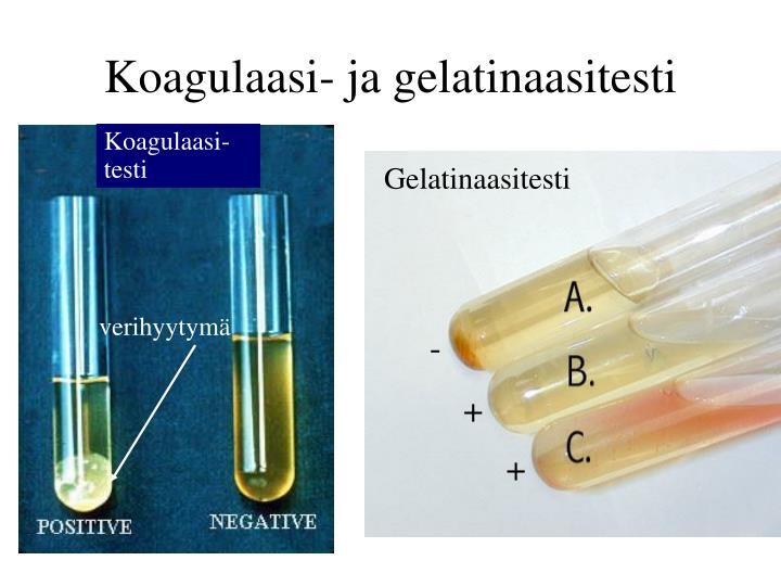 Koagulaasi-