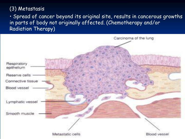(3) Metastasis