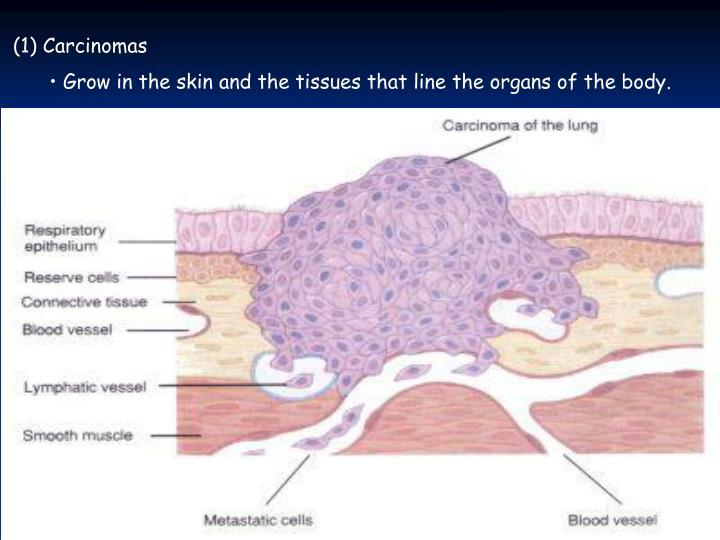 (1) Carcinomas