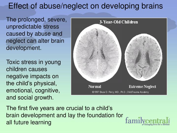The prolonged, severe, unpredictable stress caused by abuse and neglect can alter brain development.