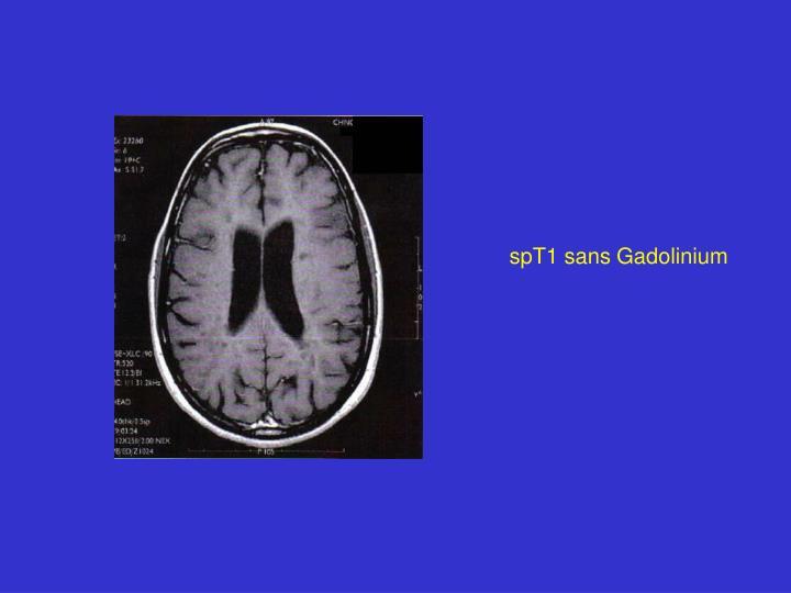 spT1 sans Gadolinium