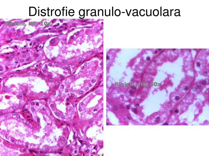 Distrofie granulo-vacuolara