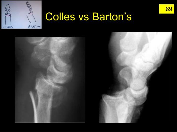 Colles vs Barton's