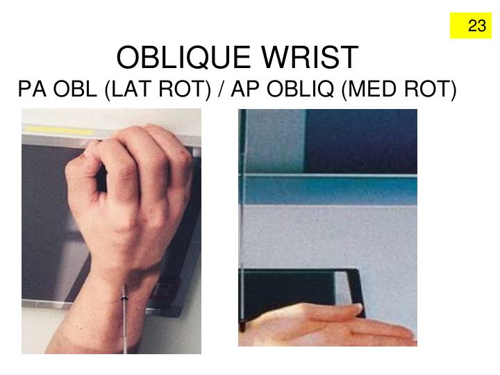 OBLIQUE WRIST