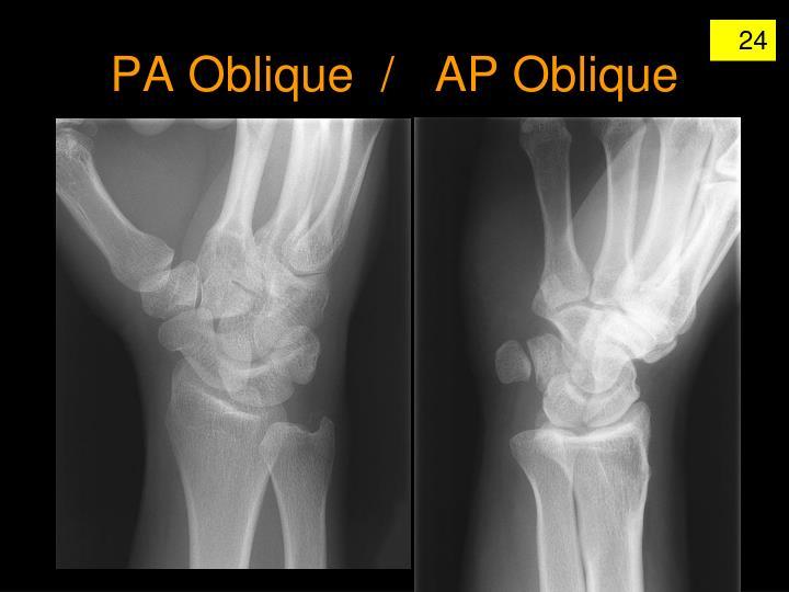 PA Oblique  /   AP Oblique