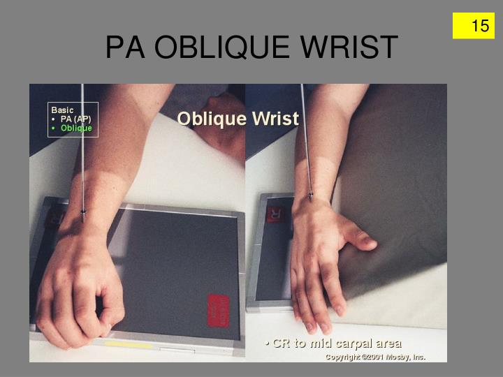 PA OBLIQUE WRIST