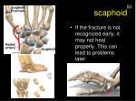 scaphoid1