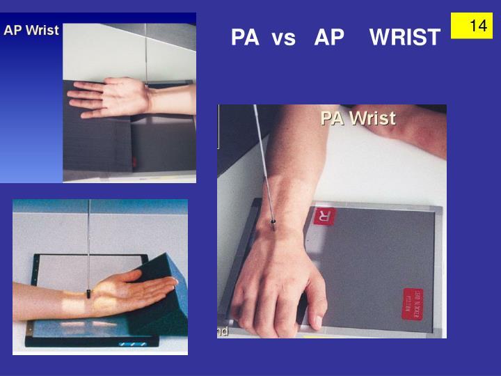 PA  vs   AP    WRIST