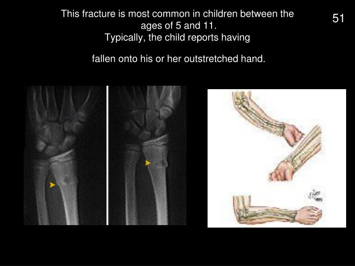 This fracture is most common in children between the