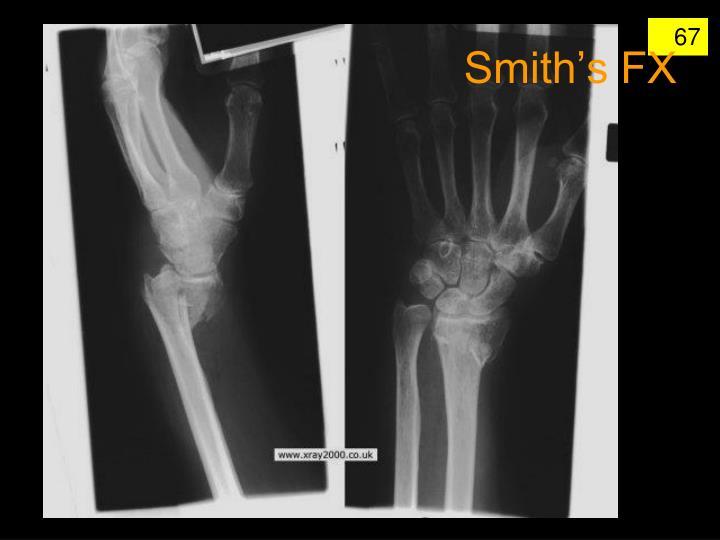 Smith's FX