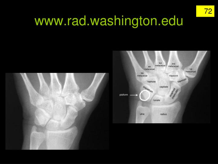 www.rad.washington.edu