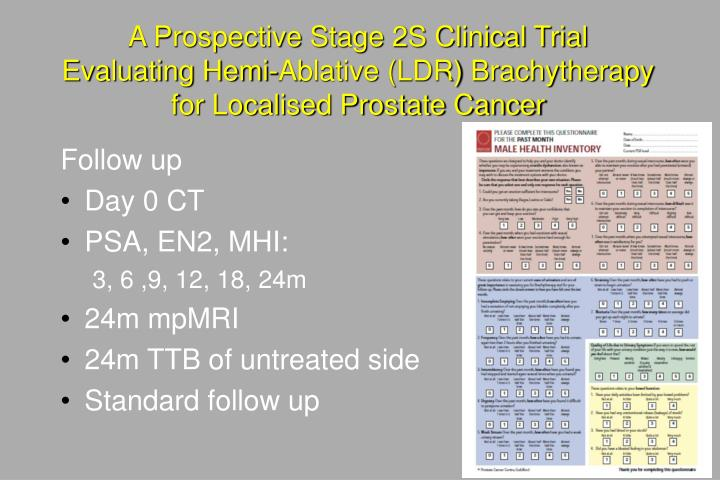 A Prospective Stage 2S Clinical Trial Evaluating Hemi-Ablative (LDR) Brachytherapy for Localised Prostate Cancer