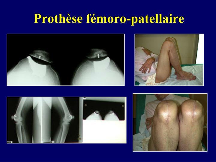 Prothèse fémoro-patellaire