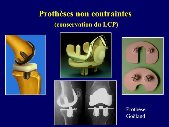 Prothèses non contraintes