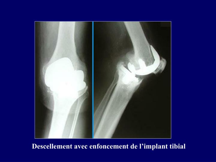 Descellement avec enfoncement de l'implant tibial
