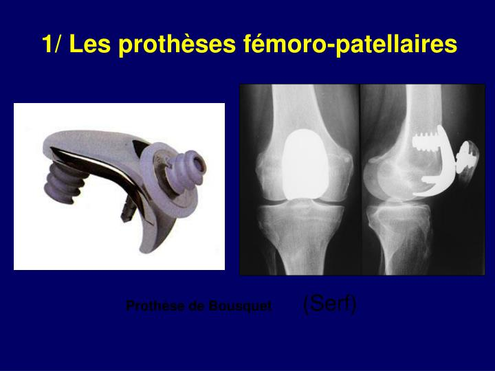 1/ Les prothèses fémoro-patellaires