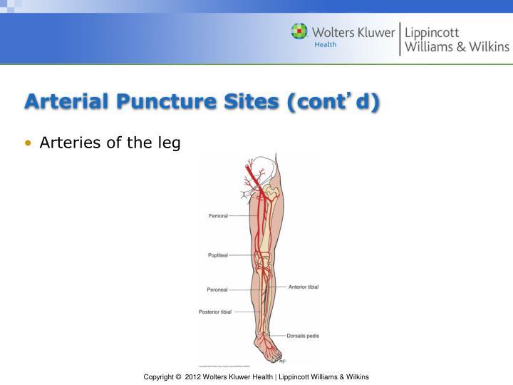 PPT - Chapter 14: Arterial Puncture Procedures PowerPoint..