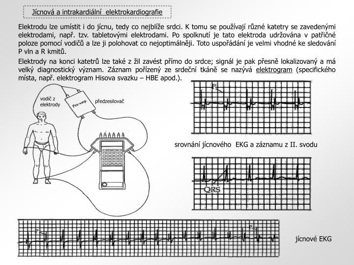 vodič z elektrody