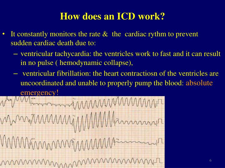 How does an ICD work?