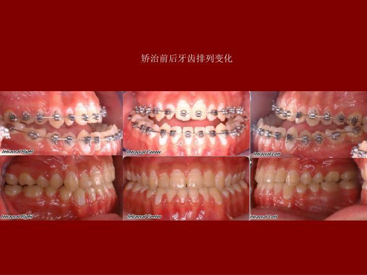 矫治前后牙齿排列变化