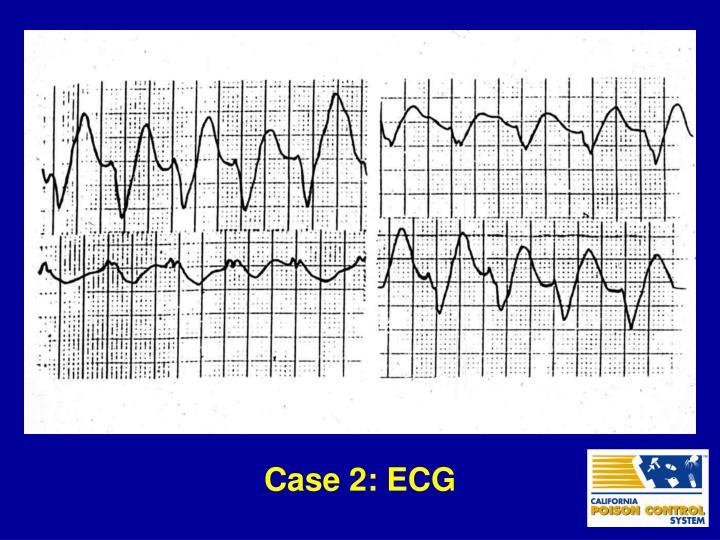 Case 2: ECG