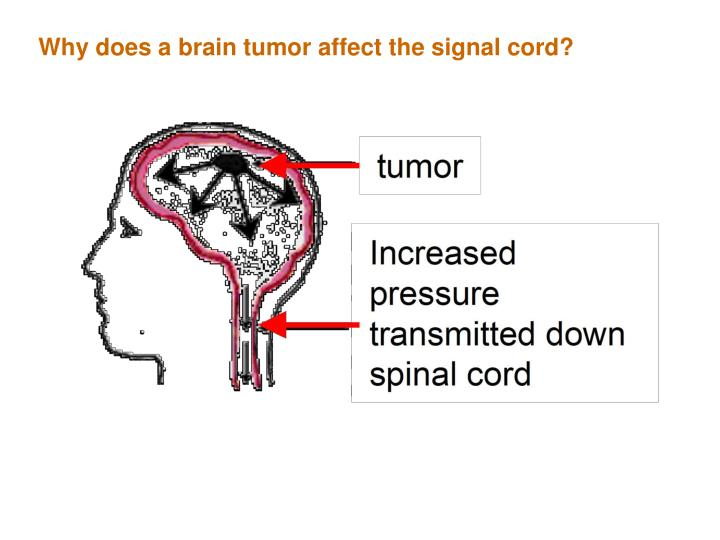 Why does a brain tumor affect the signal cord?
