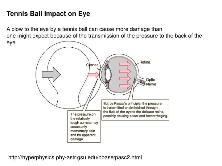 Tennis Ball Impact on Eye