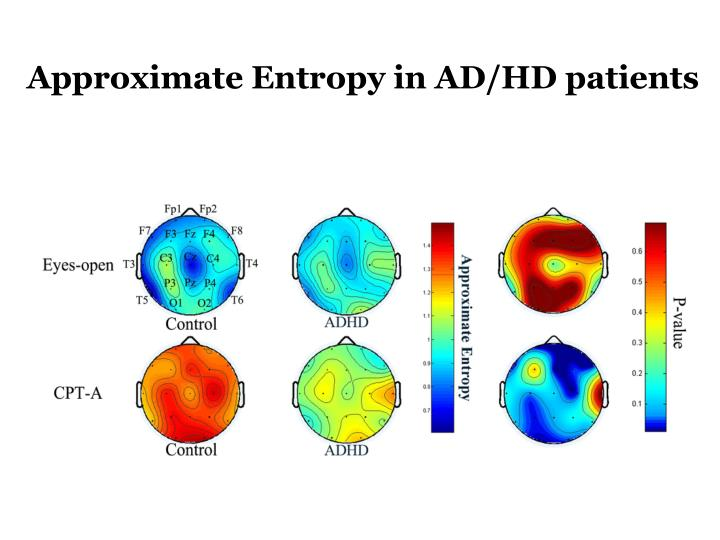 Approximate Entropy in AD/HD patients