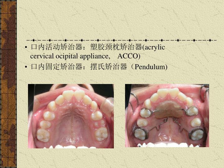 口内活动矫治器:塑胶颈枕矫治器