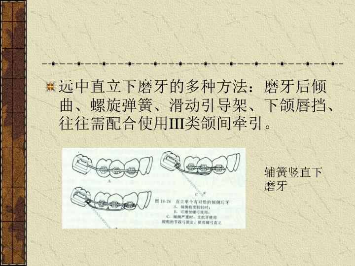 远中直立下磨牙的多种方法:磨牙后倾曲、螺旋弹簧、滑动引导架、下颌唇挡、往往需配合使用