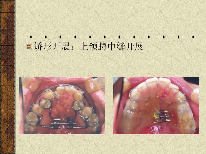 矫形开展:上颌腭中缝开展