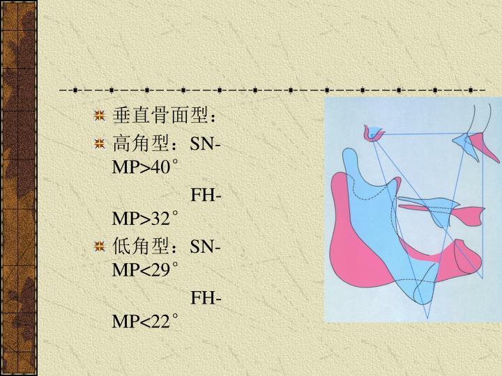 垂直骨面型: