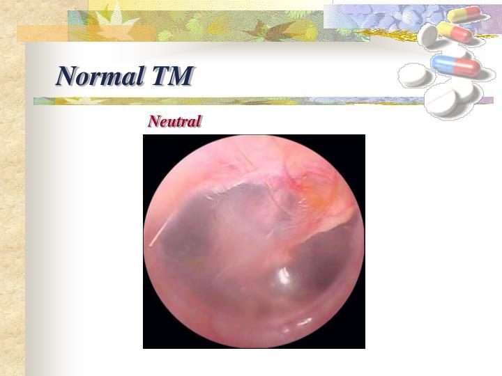 Normal TM