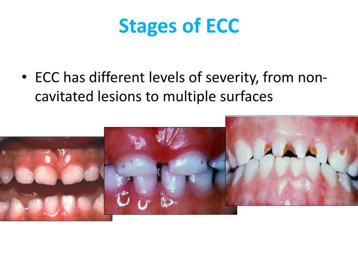 Stages of ecc