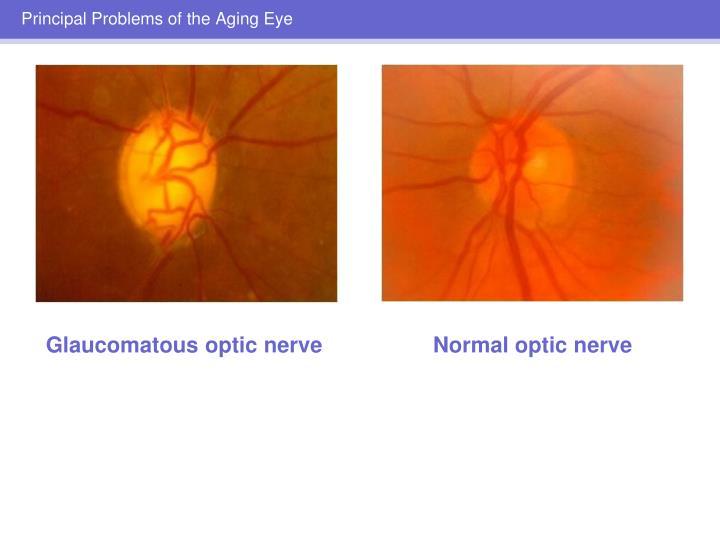 Glaucomatous optic nerve