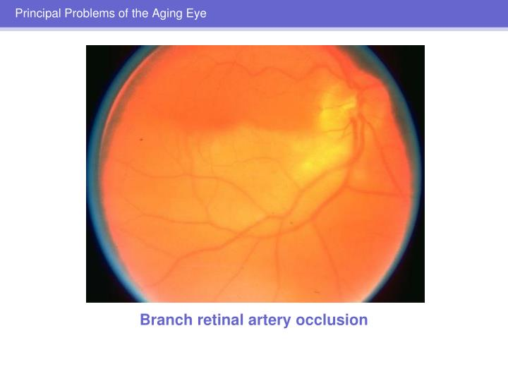 Principal Problems of the Aging Eye