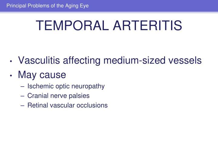 Vasculitis affecting medium-sized vessels