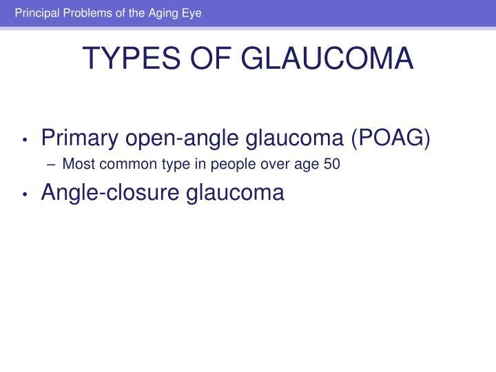 Primary open-angle glaucoma (POAG)