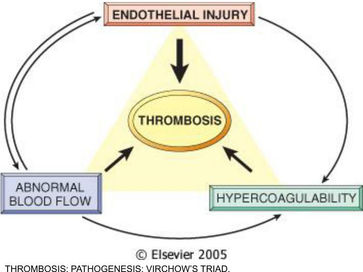 THROMBOSIS: PATHOGENESIS: VIRCHOW'S TRIAD.